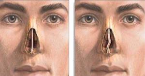 Носовая перегородка искривлена