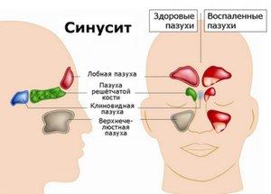 Лечение сунисита с применением капель Фенилэфрин