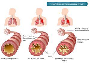 Какие изменения в бронхах при астме