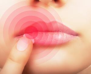 Как избавиться от герпеса на губах