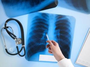 Симптомы туберкулезной болезни
