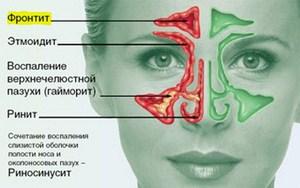Описание воспалительного заболевания носовой полости риносинусита