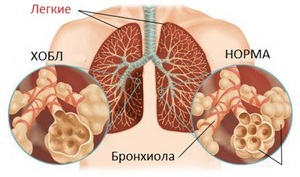 Как лечат заболевания бронхов