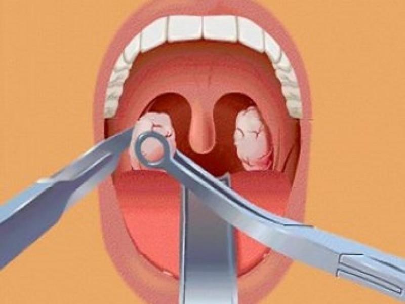 Паратонзиллярный абсцесс требует срочного лечения
