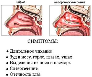 Ринит: симптомы заболевания