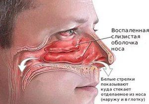 Причины воспаления слизистой носа