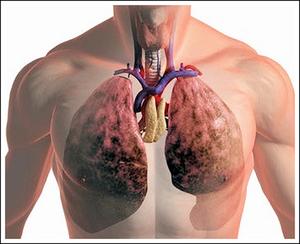 Способы лечения легких