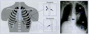 Рентген легких - пневмоторакс