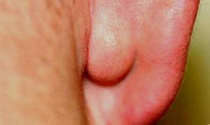 Шишка на ухе - жировик или нет?