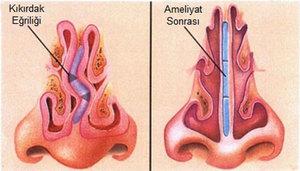 Операция вазотомия носа