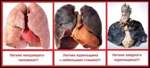 Сравнение легких до курения и после