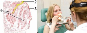 Лечение пробок в горле в стационаре