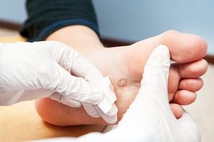 Описание заболеваний которые можно лечить оксолиновой мазью