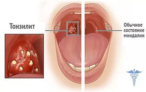 Острый тонзиллита и его лечение