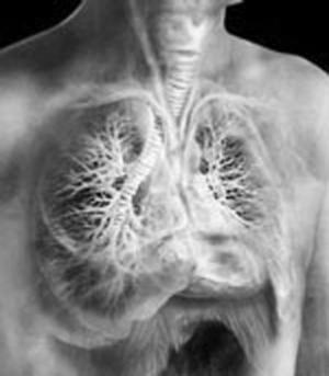 Чем заразна туберкулома