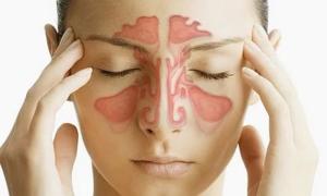 Синусит характерен неприятными симптомами и долгим течением