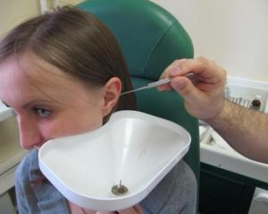 Удаление пробки в ухе - на приеме у врача