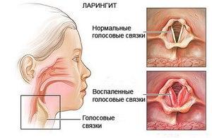 Диагностика ларингита
