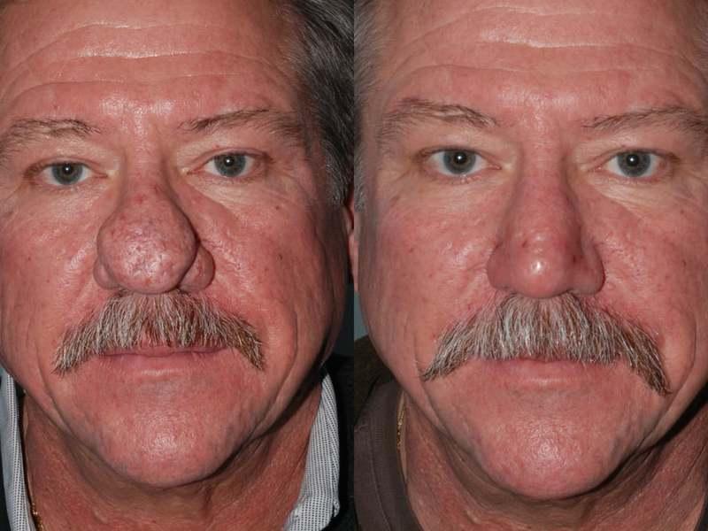 Как проявляется ринофима носа