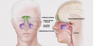Обследование придаточных пазух носа