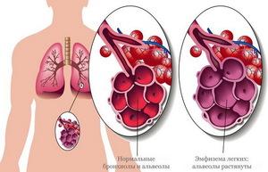 Что происходит в организме при эмфиземе легких