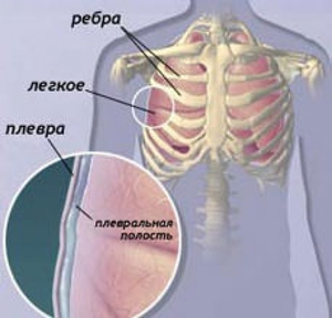 Факторы вызывающие наслоения в легких