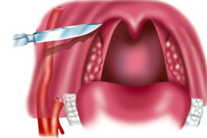 Лечение абсцесса в горле