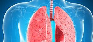 Чем опасна пневмония?