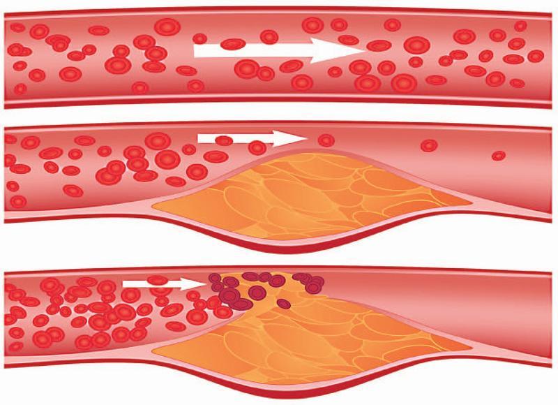 Опасность атеросклероза при переизбытке белка