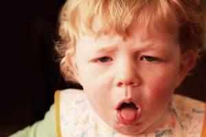 Приступообразный кашель при коклюше