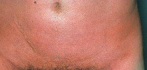 Симптомы скарлатины во время беременности