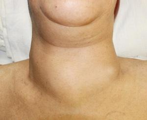 Классификация заболеваний щитовидки