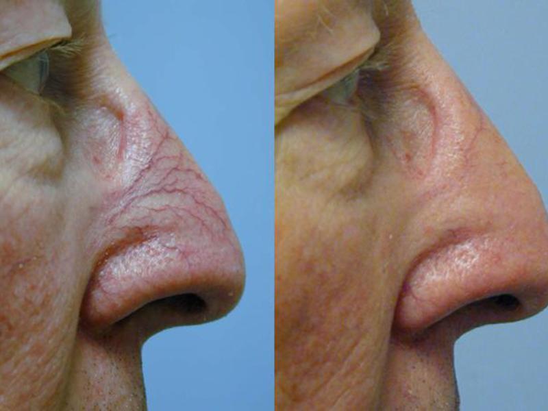 Заболеание ринофима носа