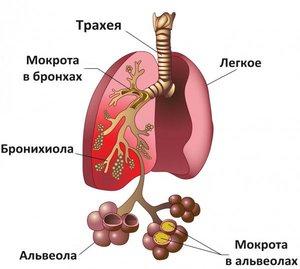Как лечить двухстороннюю пневмонию