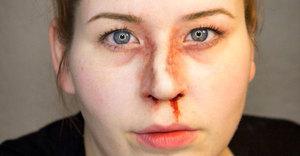 Ринопластика при переломе носа