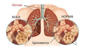 Этиологическая классификация болезни