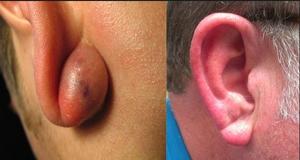 Почему на мочке уха появилась шишка