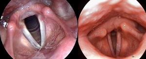 Фиброларингоскопия - диагностика заболеваний горла