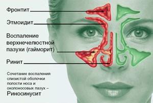 Отличие этмоидита от других заболеваний