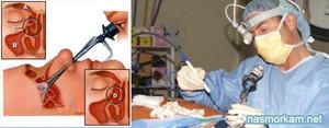 Лечение верхнечелюстной кисты