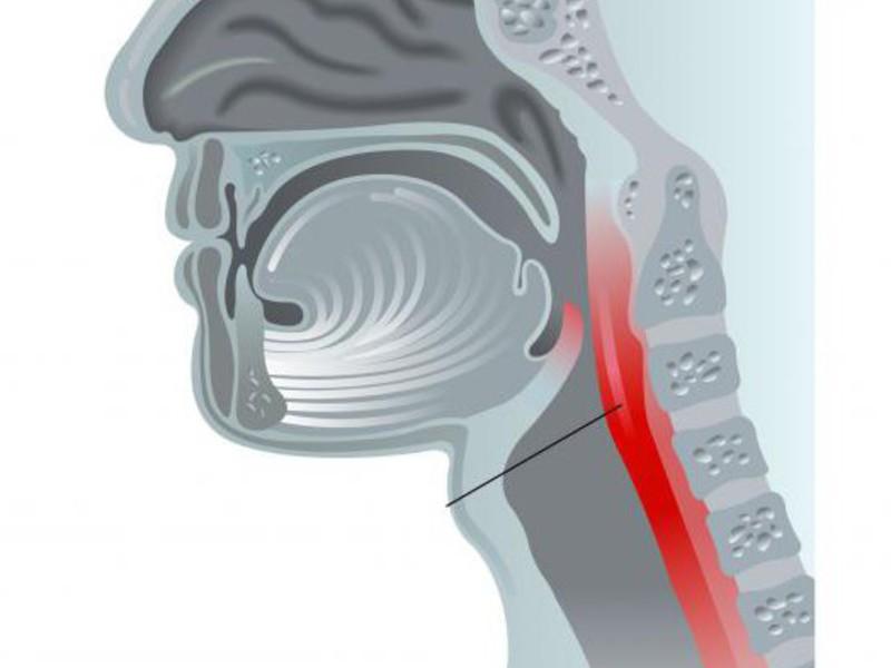 Как лечат фарингит в горле