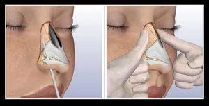 Ринопластика при переломе костей носа