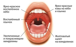 Причины мононуклеоза