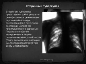 Как лечить туберкулез легких