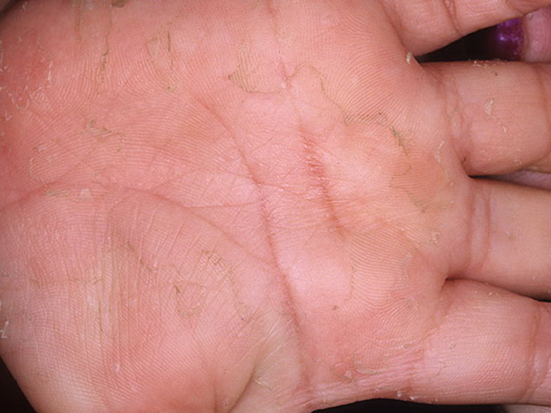Чем лечат скарлатину