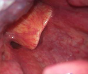 Абсцесс надгортанника — это осложнение эпиглоттита