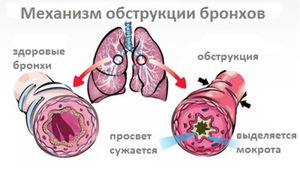 Заболевание бронхита
