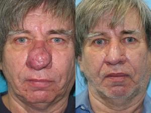 Что такое ринофима носа