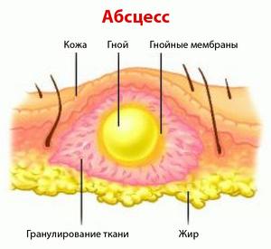 Медикаментозное лечение абсцесса