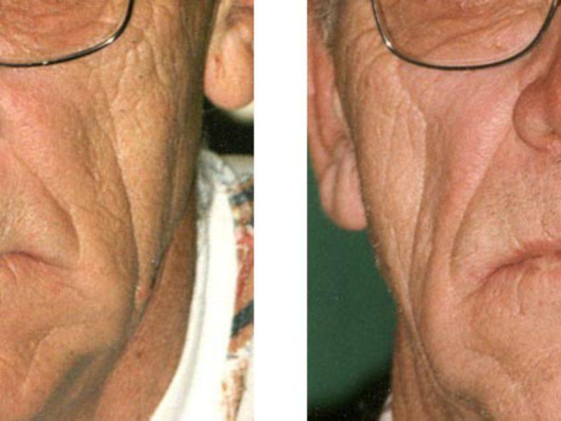 Ринофима носа